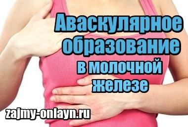 Анэхогенное аваскулярное образование в молочной железе